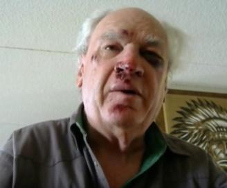 Gary Larrabee broken face